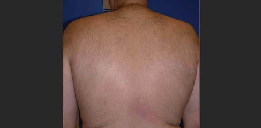 laser hair removal 2 after